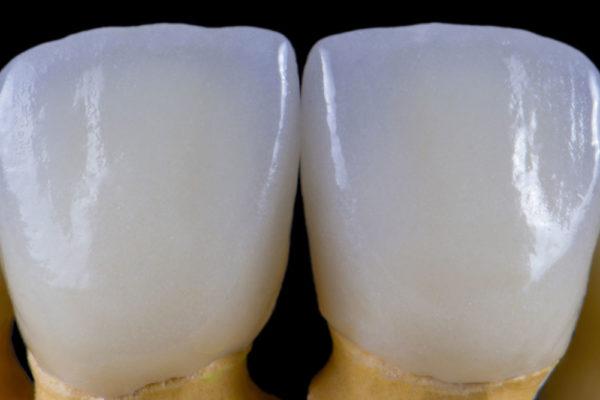 Realizzazione protesi in zirconio