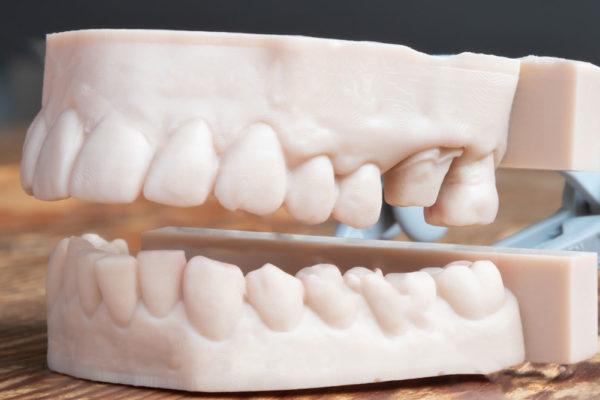 Stampa 3D laboratorio odontotecnico